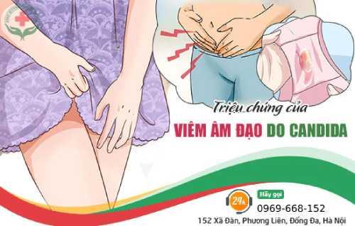 triệu chứng viêm nấm âm đạo