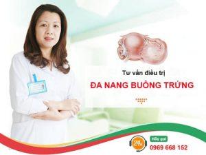 điều trị buồng trứng đa nang