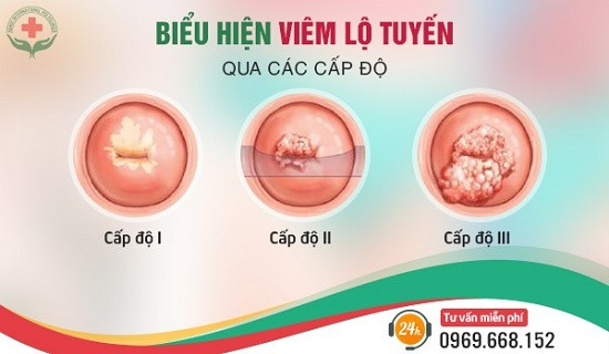 Biểu hiện viêm lộ tuyến cổ tử cung qua từng cấp độ