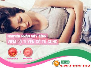 Nguyên nhân gây viêm lộ tuyến cổ tử cung