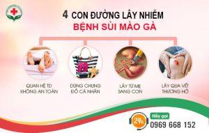 4 con đường lây nhiễm bệnh sùi mào gà