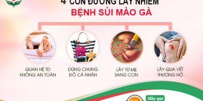 sui-mao-ga-lay-nhiem-qua-nhung-con-duong-nao