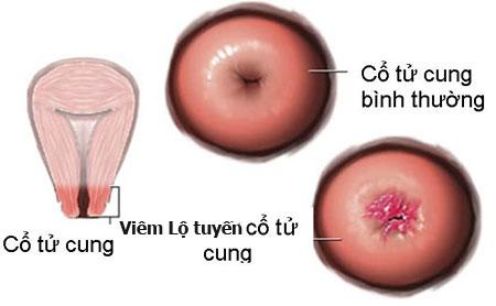 Viêm lộ tuyến cổ tử cung cấp độ 1