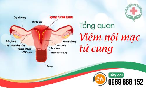 Viêm nội mạc tử cung