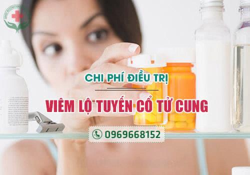 chi phí chữa viêm lộ tuyến cổ tử cung